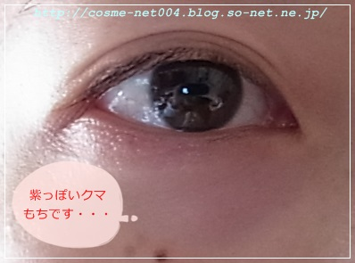 ホメオバウ アイクリーム1-7.JPG
